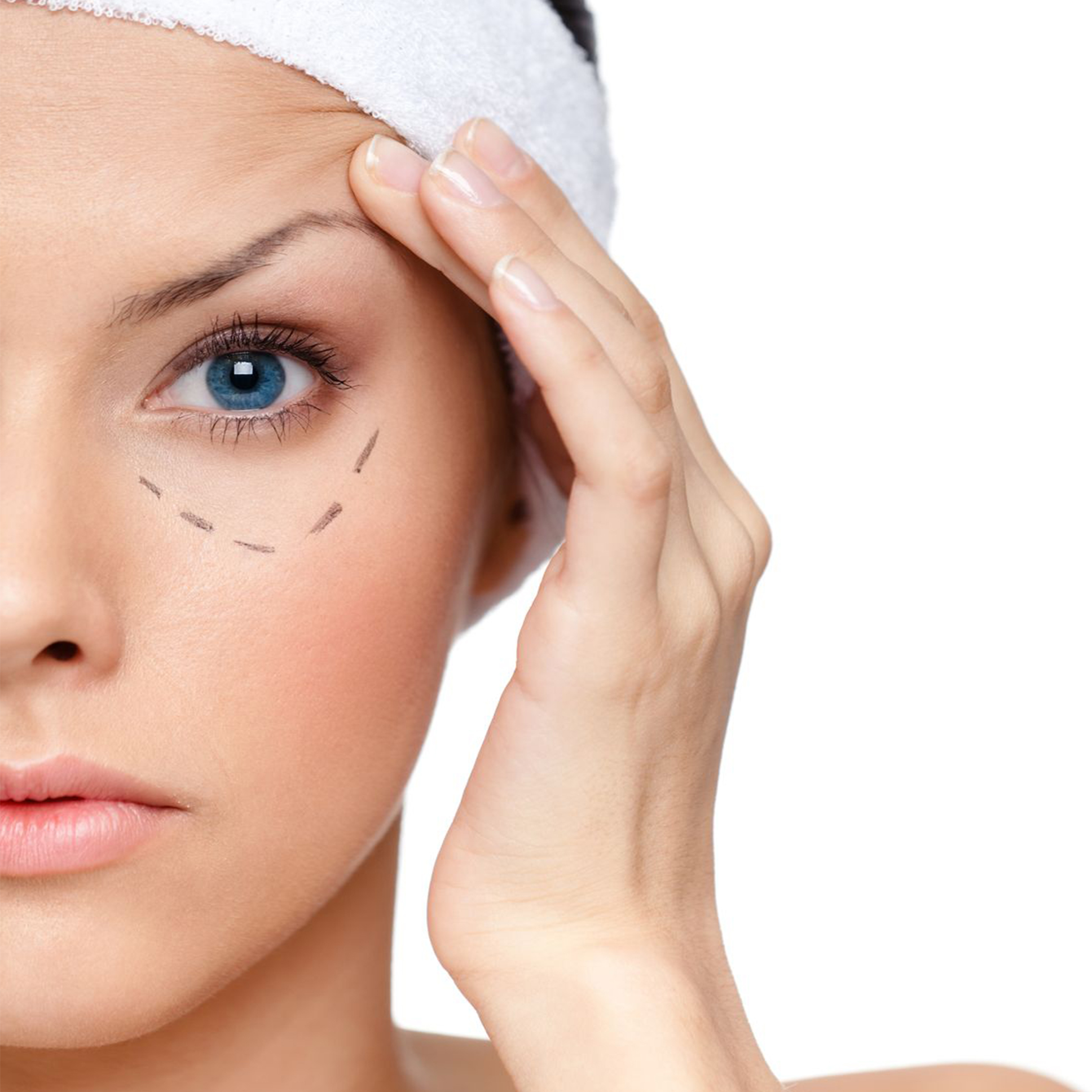 Are there any risks with Thermage?