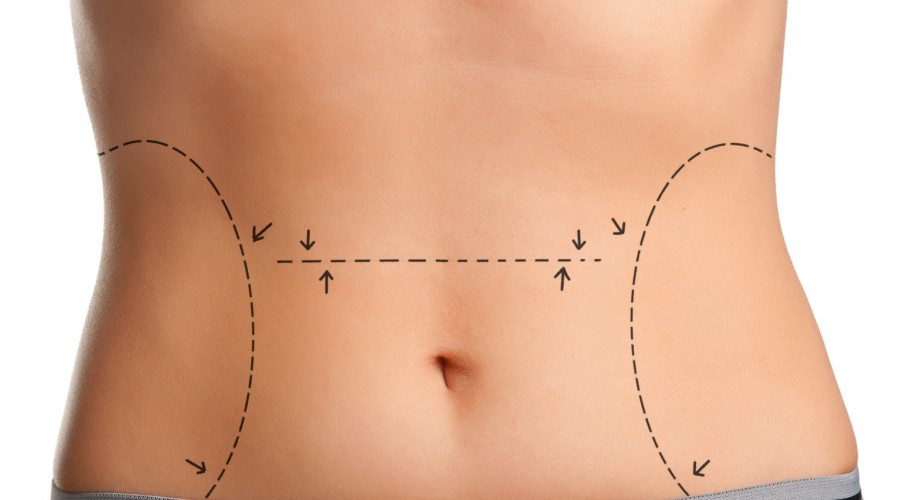 Are there any risks with Laser skin tightening?